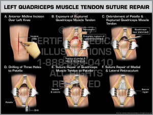 Exhibit of Left Quadriceps Muscle Tendon Suture Repair - Print Quality Instant Download