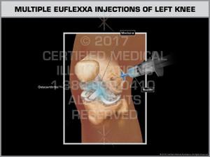 Exhibit of Multiple Euflexxa Injections of Left Knee - Print Quality Instant Download
