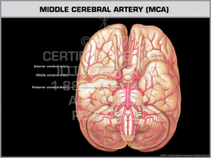 Exhibit of Middle Cerebral Artery (MCA)