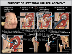 Surgery of Left Total Hip Replacement- Print Quality Instant Download