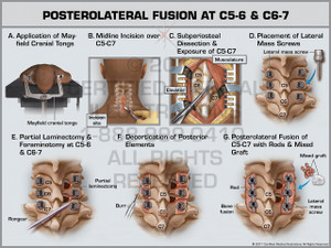 Posterolateral Fusion at C5-6 & C6-7- Print Quality Instant Download