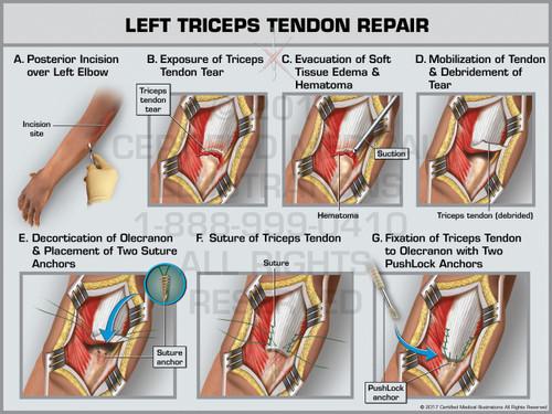 Exhibit of Left Triceps Tendon Repair