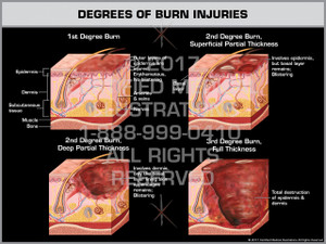 Exhibit of Degrees of Burn Injuries