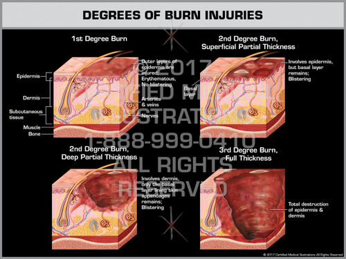 Exhibit of Degrees of Burn Injuries - Print Quality Instant Download