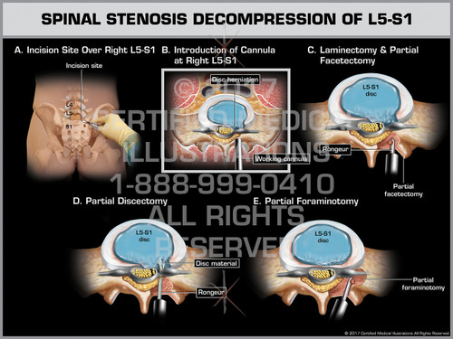 Exhibit of Spinal Stenosis Decompression of L5-S1