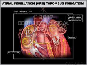Exhibit of Atrial Fibrillation (AFIB) Thrombus Formation