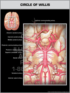 Exhibit of Circle of Willis