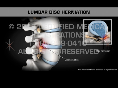 Animation of Lumbar Disc Herniation