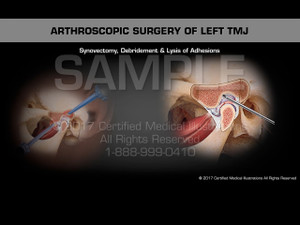 Arthroscopic Surgery of Left TMJ