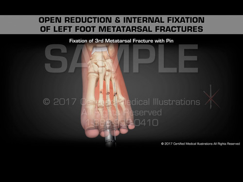 Open Reduction & Internal Fixation of Left Foot Metatarsal Fractures