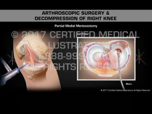 Animation of Arthroscopic Surgery & Decompression of Right Knee