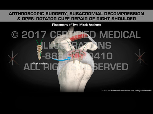 Animation of Arthroscopic Surgery, Subacromial Decompression & Open Rotator Cuff Repair of Right Shoulder