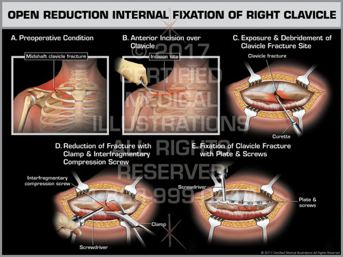 Exhibit of Open Reduction Internal Fixation of Right Clavicle- Print Quality Instant Download
