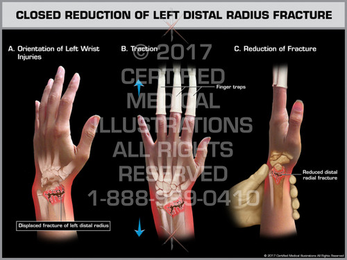 Exhibit of Closed Reduction of Left Distal Radius Fracture- Print Quality Instant Download