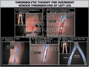 Exhibit of Thrombolytic Therapy for Overnight Venous Thrombolysis of Left Leg- Print Quality Instant Download