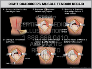 Exhibit of Right Quadriceps Muscle Tendon Repair- Print Quality Instant Download