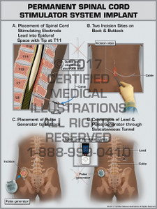 Exhibit of Permanent Spinal Cord Stimulator System Implant- Print Quality Instant Download