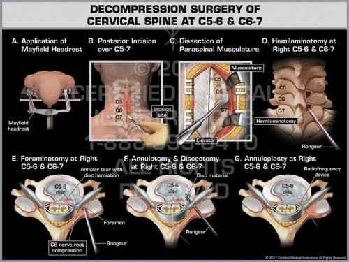 Exhibit of Decompression Surgery of Cervical Spine at C5-6 & C6-7- Print Quality Instant Download