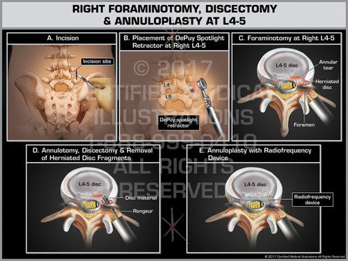 Exhibit of Right Foraminotomy, Discectomy & Annuloplasty at L4-5- Print Quality Instant Download