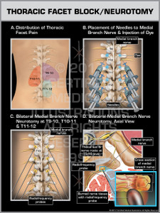 Exhibit of Thoracic Facet Block/Neurotomy- Print Quality Instant Download