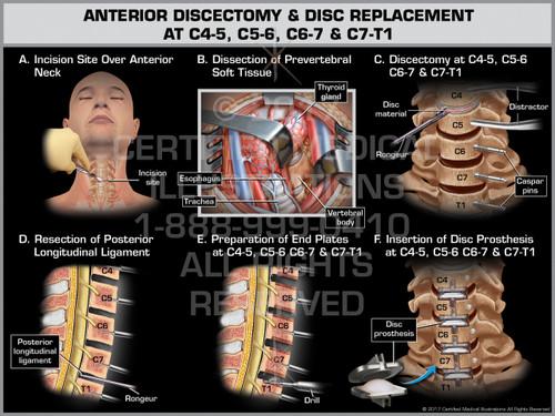 Exhibit of  Anterior Discectomy & Disc Replacement at C4-5, C5-6, C6-7 & C7-T1- Print Quality Instant Download