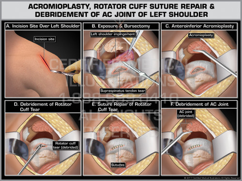 Exhibit of  Acromioplasty, Rotator Cuff Suture Repair & Debridement of AC Joint of Left Shoulder