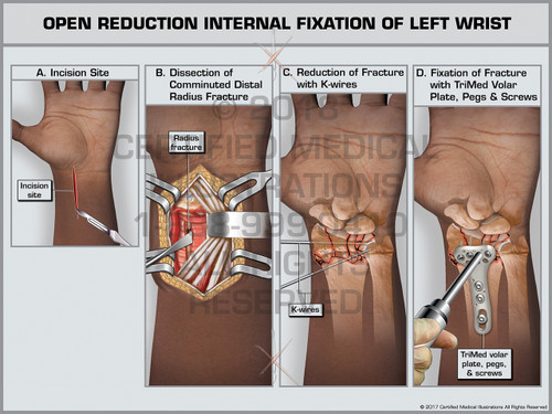 Exhibit of Open Reduction Internal Fixation of Left Wrist