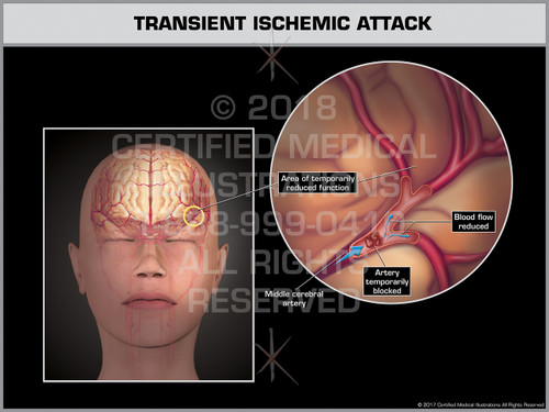 Exhibit of Transient Ischemic Attack- Print Quality Instant Download