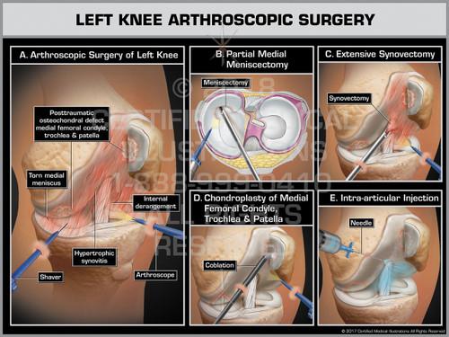 Exhibit of Left Knee Arthroscopic Surgery