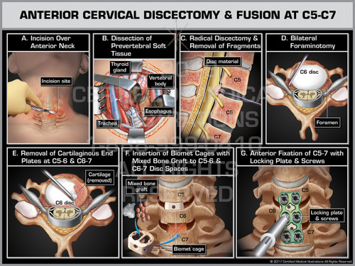 Exhibit of Anterior Cervical Discectomy & Fusion at C5-C7- Print Quality Instant Download