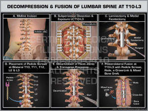 Exhibit of Decompression & Fusion of Lumbar Spine at T10-L3