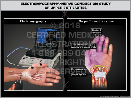 Exhibit of Electromyography/ Nerve Conduction Study of Upper Extremities