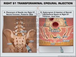 Exhibit of Right S1 Transforaminal Epidural Injection- Print Quality Instant Download