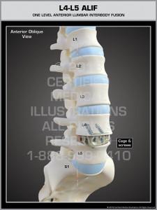 L4-L5 ALIF (Anterior-Lumbar Stabilization System)