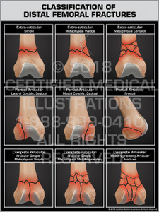 Classification of Distal Femoral Fractures