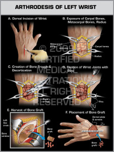 Exhibit of Arthrodesis of Left Wrist.