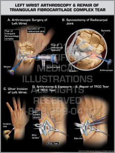 Exhibit of Left Wrist Arthroscopy & Repair of Triangular Fibrocartilage Complex Tear.
