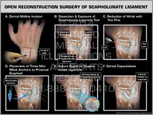 Exhibit of Open Reconstruction Surgery of Scapholunate Ligament.