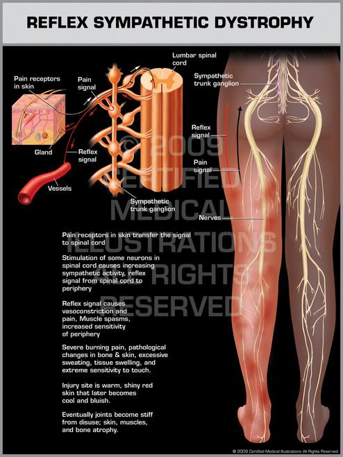 Exhibit of Reflex Sympathetic Dystrophy Lower Limb.