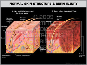 Exhibit of Normal Skin Structure & Burn Injury.