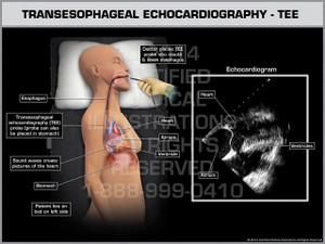 Exhibit of Transesophageal Echocardiography - TEE Female.