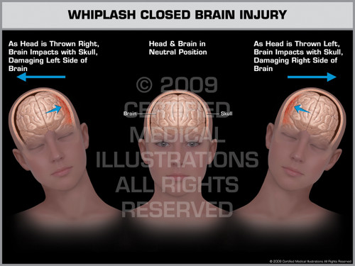 Exhibit of Whiplash Closed Brain Injury Female.