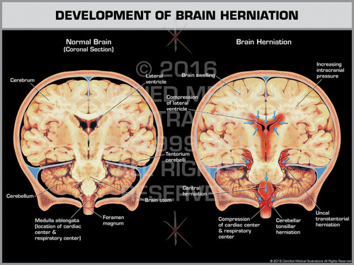 exhibit of development of brain herniation coronal section