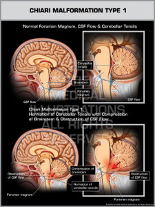 Exhibit of Chiari Malformation Type I.