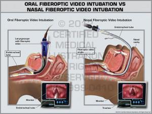 Exhibit of Oral Fiberoptic Video Intubation vs Nasal Fiberoptic Video Intubation.