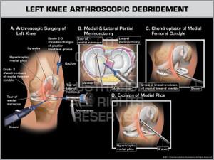 Exhibit of Left Knee Arthroscopic Debridement.