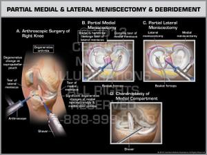 Exhibit of Partial Medial & Lateral Meniscectomy & Debridement.