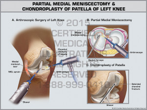 Partial Medial Meniscectomy & Chondroplasty of Patella of Left Knee