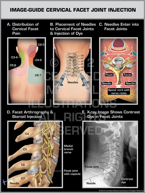 Exhibit of Image-Guide Cervical Facet Joint Injection Female.