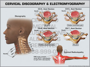 Exhibit of Cervical Discography & Electromyography.